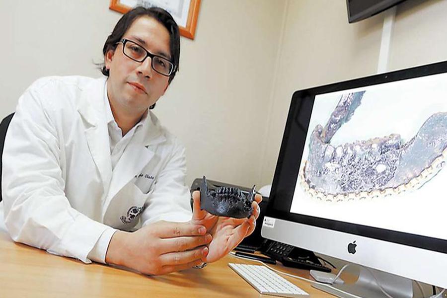 Realizan pionera cirugía maxilofacial utilizando tecnología tridimensional